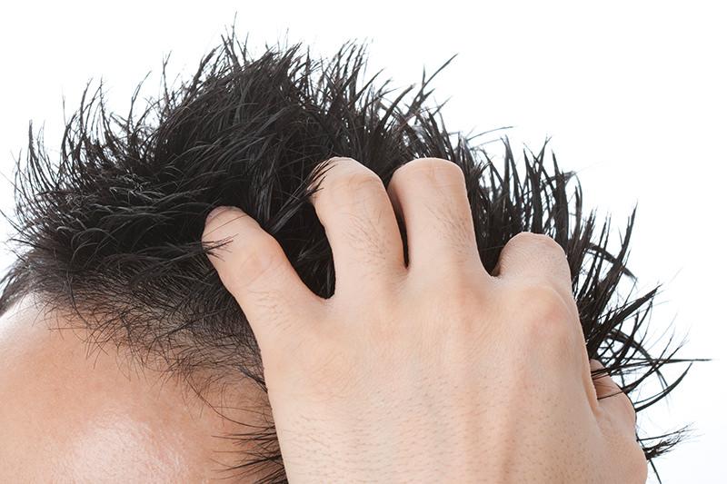 髪の毛が薄くなった、勃起不全(ED)など老化でお悩みの方